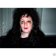 """Nan after being battered, 1984. """"The camera is as much a part of my everyday life as talking or eating or sex. The instant of photographing, instead of creating distance, is a moment of clarity and emotional connection for me."""" —Nan Goldin"""