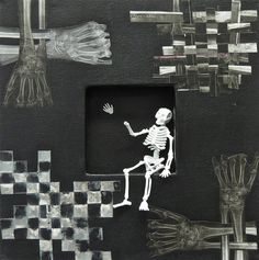 "Fractured Series One of One 12"" x 12"" Shadowbox canvas with X-rays, and broken wrist Skeleton figurine"