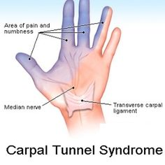 Median nerve entrapment) Carpal tunnel syndrome is pressure on the median nerve -- the nerve in the wrist that supplies feeling and movement to parts of the hand. Herbal Remedies, Health Remedies, Home Remedies, Health And Beauty Tips, Health Tips, Health And Wellness, Hand Therapy, Massage Therapy, Herbal Medicine
