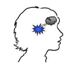 hjerne 2b