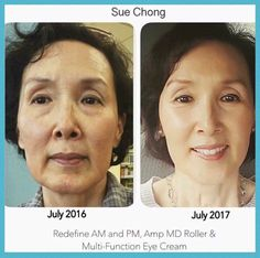 Look years younger with REDEFINE!!