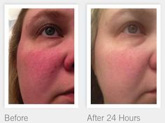 SOOTHE your Skin with Rodan + Fields today!! http://debboutchyard.myrandf.com