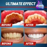 Intensive Stain Removal Toothpaste – BOGO Off – Ends Today - Sante Dentaire Instant White Teeth, Natural Stain Remover, Get Whiter Teeth, Stained Teeth, Teeth Cleaning, Cleaning Tips, Teeth Care, Skin Care, Healthy Teeth