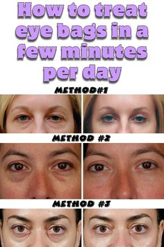 How to treat eye bags in a few minutes