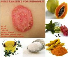 Natural Acne Remedies Home Remedies for Ringworm ( 3 Day Ringworm Treatment) - Home remedies to get rid of ringworm. Remedies to treat ringworm naturally. How to cure ringworm fast? Get rid of ringworm instantly. Get Rid Of Ringworm, Home Remedies For Ringworm, Cystic Acne Remedies, Natural Acne Remedies, Hair Remedies, Cold Remedies, Health Remedies, Fungi, Diy