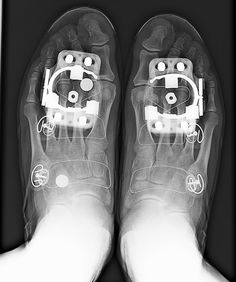 X-Ray shows Speedplay cleat placement on cycling shoe, in relation to foot bone structure. It's amazing the difference in pedal stroke power when everything is lined up.