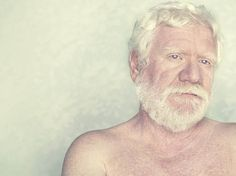 Retratos de albinos - 3