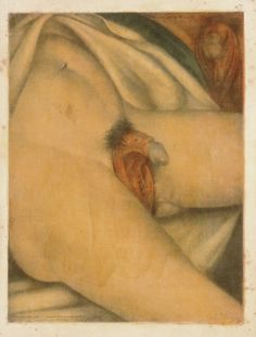 18th century medical illustration of hermaphoditism.  Paris, 1773. Colored mezzotint. National Library of Medicine  Jacques Fabien Gautier D'Agoty (1717-1785)