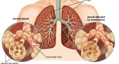 Home Remedies to Treat Emphysema Naturally