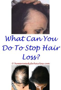 Decaf Coffee And Hair Loss Advantage Ii Cat Hair Loss Hair Loss