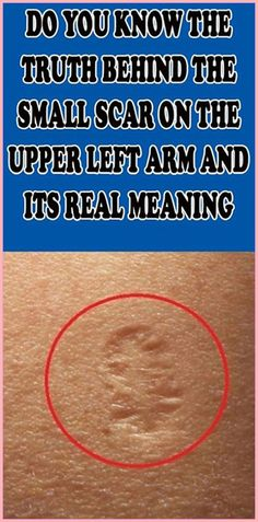 Do You Know The Truth Behind The Small Scar On The Upper Left Arm And Its Real Meaning - Have you ever wondered what that small scar on the upper left arm is? You might have seen it on som - Medicine Book, Herbal Medicine, Natural Medicine, Health And Fitness Articles, Health And Nutrition, Health Fitness, Nutrition Tips, Ayurveda, Cannabis