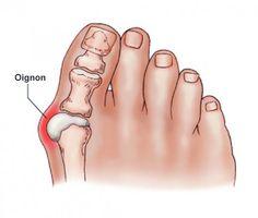 """""""Les oignons de pieds, ou hallux valgus sont en fait des dépôts de sel (urate de sodium). Leur formation est déclenchée par la grippe, l'amygdalite, la goutte, un métabolisme pauvre, une mauvaise nutrition, l'inflammation articulaire aiguë et le port de…"""