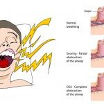 Can I Get Rid Of Snoring With Juice Therapy?