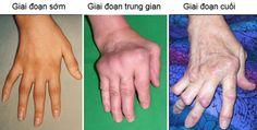 Tin Sức Khỏe Biến dạng chân tay do viêm khớp