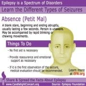 Absence seizures sometimes go unnoticed. Another of my sz types