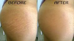 How to get rid of stretch marks fast!
