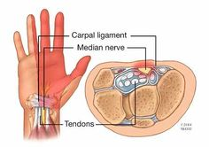 #Carpaltunnel affects hands but symptoms differ from #arthritis http://mayocl.in/1qtfZaA