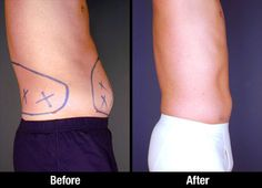 Male liposuction patient before & after picture of tumescent liposuction procedure