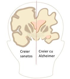 Illustration about Alzheimer disease brain compared to normal, Illustration of body, atrophy, comparison - 27017453 Alzheimer's Brain, Alzheimers, Blog, Anatomy, Neurology, Blogging