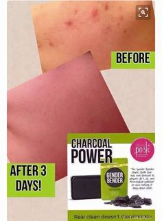 If you have acne or oily skin, Gender Bender Chunk Bar from Perfectly Posh has the charcoal power to clear it up fast! https://FabulousT.po.sh/