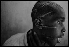 Rwandan genocide - This Hutu man was starved and attacked with a machete