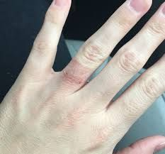 Suddenly Allergic Wedding Ring Rash Wedding Necessities Wedding Rings Simple