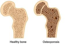 Sadly, many people have no idea that they have been losing bone mass for years until — suddenly and without warning — a twist, a bend, or… Maca Benefits, Coconut Benefits, Health Benefits, Us Health, Bone Health, Health Fitness, Bone Density Test, Gluten Intolerance Symptoms, Bone Fracture