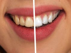 Best Whitening Toothpaste, Toothpaste Brands, Natural Teeth Whitening, Whitening Kit, How To Whiten Underarms, Cure Diabetes Naturally, Cosmetic Dentistry, White Teeth, Oral Hygiene