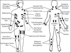Image result for TENS unit electrode placement for SI