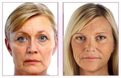 Academia de Dermatología Goji, Academia, Windows, Hair Treatment Homemade, Homemade Face Pack, Fur, Short Silver Hair, Body Image, Braid Hair