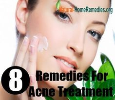 8 Home Remedies For Acne Treatment