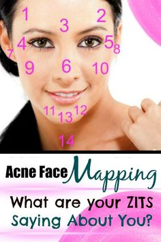 Acne Face Mapping: What Are Your Zits Saying About You? By Beauty Blogger Barbie's Beauty Bits