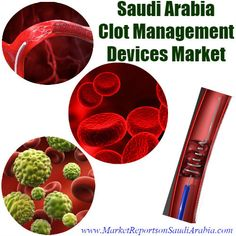 #SaudiArabia #Clot Management #Devices Market