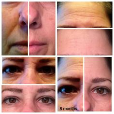 Real Science, Real Results, Real People Nerium AD is changing the game and winning in the skincare battle.  Wrinkles, discoloration, large pores, scars, sagging skin. Nerium AD has a one step process to give you real results. Take the 30 day money-back guarantee challenge.  Take your own before & after pictures and see for yourself. Take Action NOW!  Connect with me to get started today!  Katg4155@gmail.com Www.katg14.nerium.com
