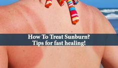 How To Treat Sunburn - How do you heal sunburn if and when it happens? Too much exposure to UV rays can cause long-lasting damage to your skin and increase risks of cancer. Be careful to tackle it head on and heal sunburn right from the early beginnings.