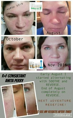 my personal Rodan + Fields results using SOOTHE and then REVERSE. so thrilled with how soft and even my complextion is now