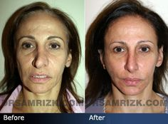 Before and after photo of 53 year old female patient who had revision rhinoplasty, facelift and neck lift.