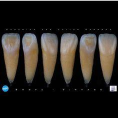 Lab technician deserve more respect! #Repost @cardona_thomas  Shofu Vintage LD. Nueva cerámica de recubrimiento para Disilicato de litio. Cocción de baja fusión 770 grados centígrados. #biomimeticstudyclub #dentaltechnicianguild #dentistry #dentist #dentalschool #dentalphotography #dentalstudent #dental #dentalcare #dentallab #biomimeticcourses