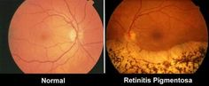 reasons for the bionic vision-  this as a comparison of a normal eye and an eye with retinal pigmentosa which as it progresses you receive less and less light which leads to legally blindness bye an age of forty.