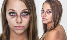 Bruised woman becomes the face of domestic violence awareness campaign