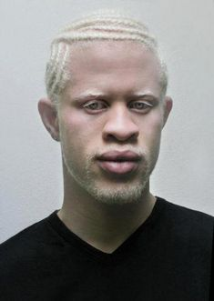 How beautiful he is with his strong features and blond hair. Natural hair How beautiful he is with his strong features and blond hair. Albino Men, Albino African, African Hair, African Beauty, Pretty People, Beautiful People, Shaun Ross, Unique Faces, Interesting Faces