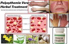 Polycythemia Vera Symptoms, Causes, Diagnosis and #Natural Treatment