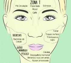 entenda o mapa das acnes no seu rosto