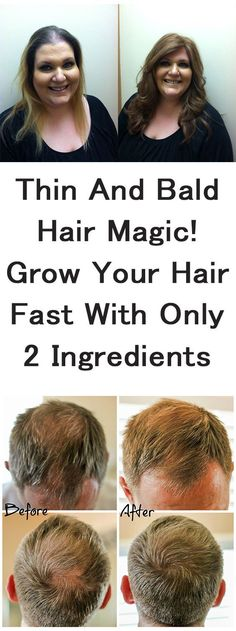 She Had Very Thin Hair But She Used This Ingredient And Got Thick Hair Within A Week!