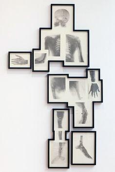 Matthew Day Jackson Bullet Man 2011 photogravure 202 x 118 cm. Graphic Pattern, Web Design, Gcse Art, Anatomy Art, Skull And Bones, Art Plastique, Artsy Fartsy, Art Projects, Art Photography