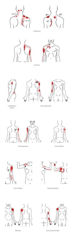 trigger point referral pain pattern for the shoulder upper arm Massage Tips, Massage Techniques, Massage Therapy, Trigger Point Therapy, Reflexology Massage, Acupressure Points, Trigger Points, Muscle Pain, Neck Pain