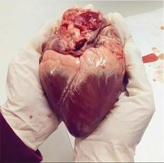 MED holded a heart in hands. Medical Memes, Medical Careers, Medical Students, Medical School, Doctor Drawing, Medical Photos, Medical Wallpaper, Heart Anatomy, Medical Laboratory Science