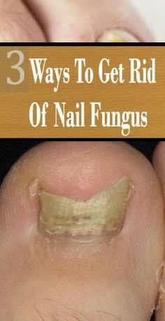 3 Ways To Get Rid Of Nail Fungus - Lifestyle