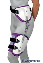 AFO - Ankle Foot Orthosis - http://www.rinella-op.com/