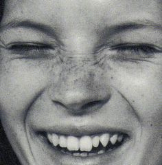 Great youthful happy smile.    One small restoration would make this smile perfect !!